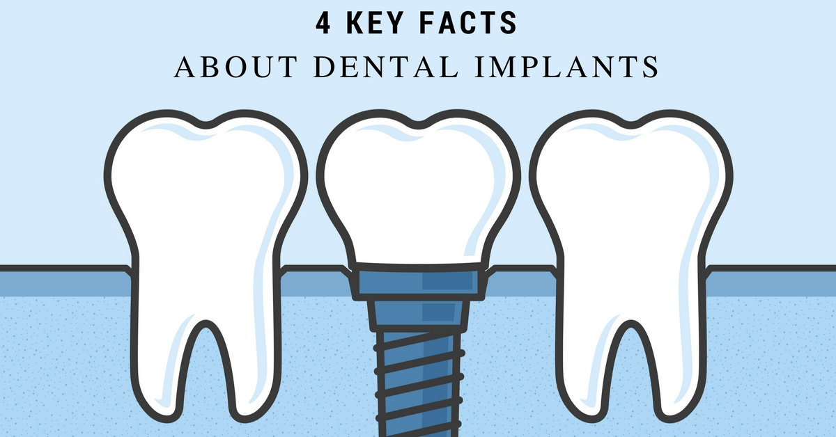 4 Key Facts About Dental Implants
